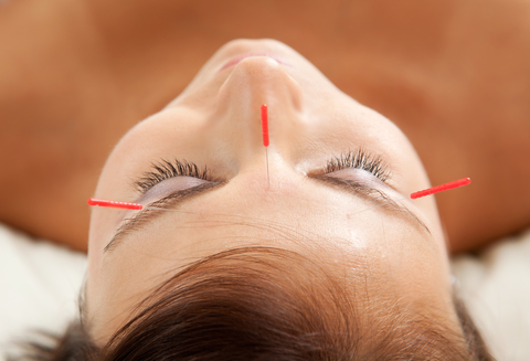 Cosmetic Acupuncture, North York